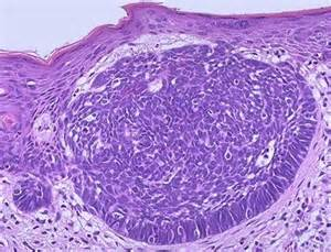 Basal Cell Carcinoma Skin Pathology Outlines pathology outlines basal cell carcinoma bcc