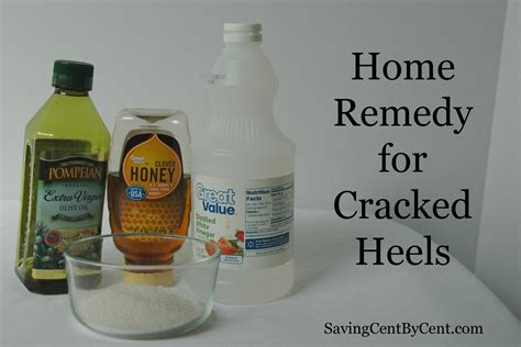 home remedy for cracked heels saving cent by cent