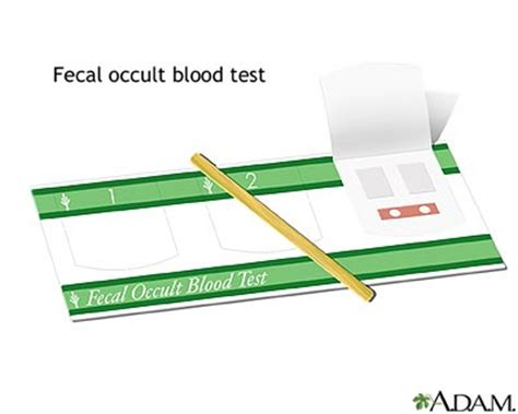 Occult Blood Stool by Occult Stool Blood Test Causes Symptoms Treatment Occult Stool Blood Test