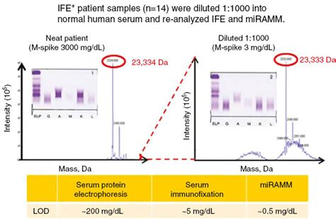 m protein measurement challenges of measuring monoclonal proteins in serum