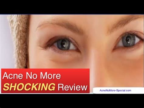 Acne No More Review by Acne No More Review Shocking My Real And Honest Acne