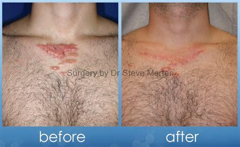 scar revision sydney