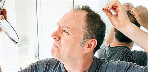 men losing hair three of the most common hair breakage causes why does baldness more common in men har vokse