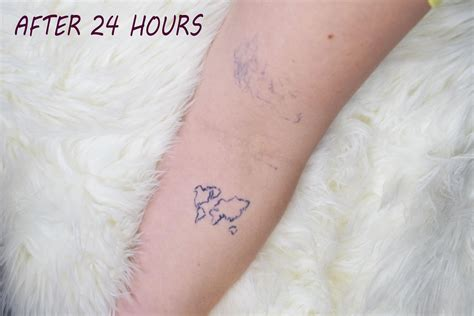 tattoo removal california inkbox remove removal
