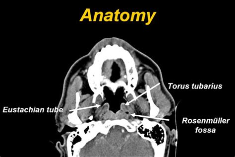 Fossa Of Rosenmuller Ct Picture And Images