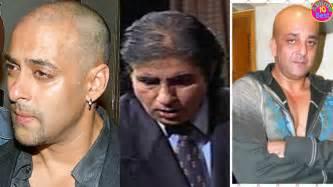 himesh reshammiya hair transplant 10 bollywood celebrities who undergo hair transplant