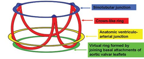 Anatomy and Function of Normal Aortic Valvular Complex InTechOpen