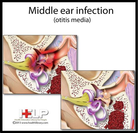 inner ear infection middle ear infection ear