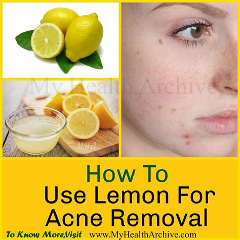 Acne Wash Lemon Tto Skinnova 2 how to use lemon for acne treatment and removal my health archive