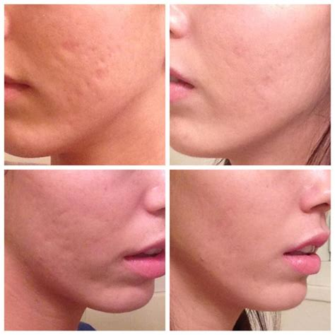 before picosure treatments and 2 weeks after my acne scars greatly improved scar treatments by