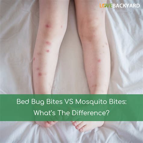 bed bug bites vs mosquito bites what s the difference