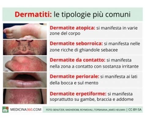 intossicazione alimentare sintomi sulla pelle dermatite cause sintomi cure e tipi atopica
