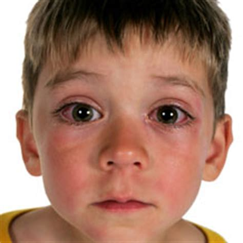 Can U Get Pink Eye From On A Pillow by What Does Pink Eye Look Like What Does It Look Like