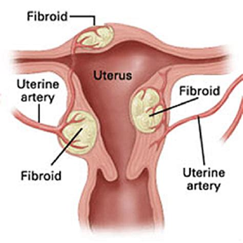 caring for yourself after surgery fibroids a minimally invasive treatments for fibroids in the uterus