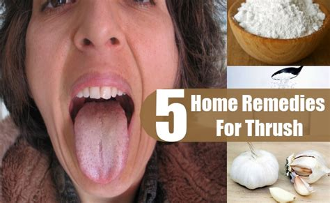 5 thrush home remedies treatments and cure usa