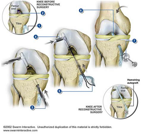 anterior cruciate ligament acl anterior cruciate ligament acl surgery health media