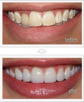 Smile Before Talk before and after pictures teeth with some cosmetic dentistry procedures your teeth can look