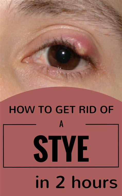 Get Rid Of That Icky Eyed Look by How To Get Rid Of A Stye In 2 Hours 101beautytips Org