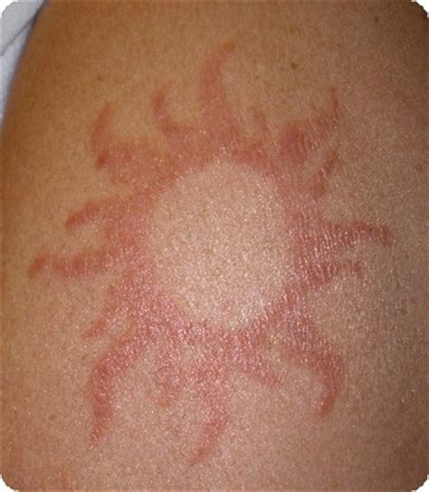 henna tattoo rash treatment itchy rash on arm www pixshark images galleries