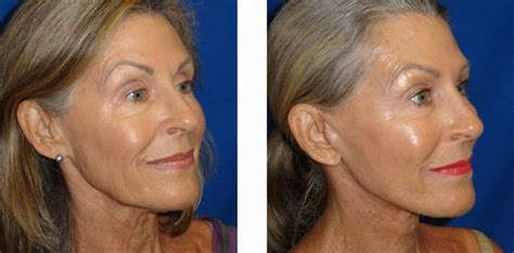 50 year old women before and after before and after makeovers for women over 60 makeover