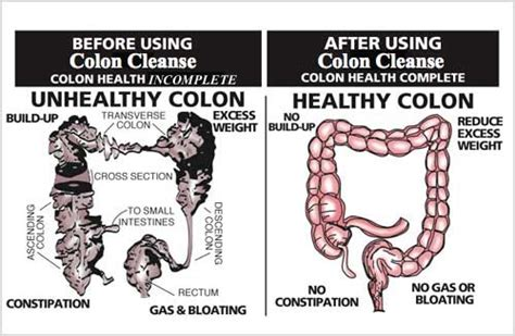 Dangers Of Repeated Detox by Colon Hydrotherapy Inner Garden Springs