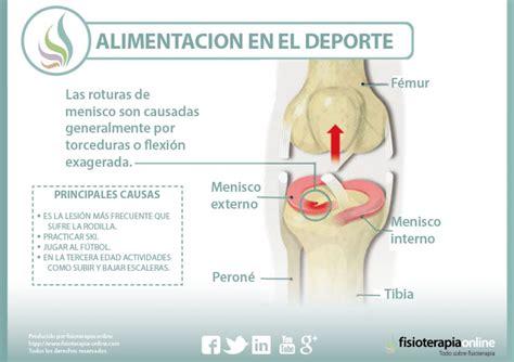 lesione menisco interno sintomi conoce lo que supone una rotura de menisco sus causas