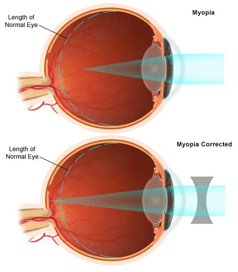 diagram mata myopia causes symptoms treatment myopia