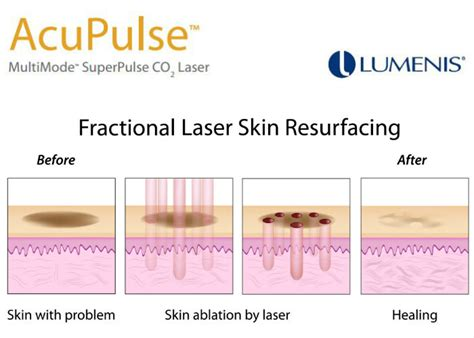 ablative laser resurfacing skin resurfacing laser lumenis acupulse co2 laser by lumenis spa cielo cabo