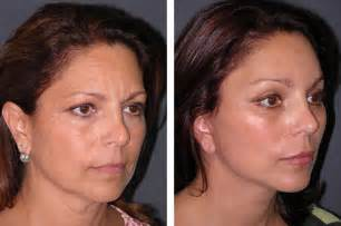 hairstyles that cover lift scars how to hide facelift scars michael douglas plastic