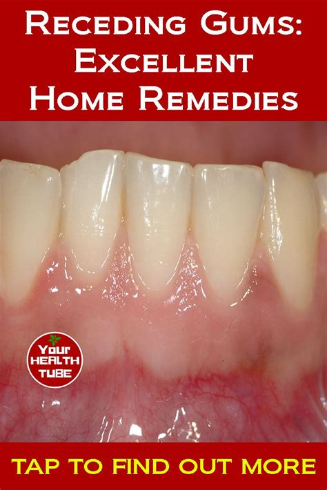 receding gums excellent home remedies health