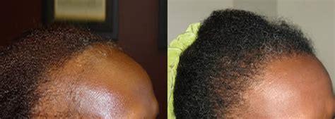 how is loop hair transplant done african american hair transplant hair restoration
