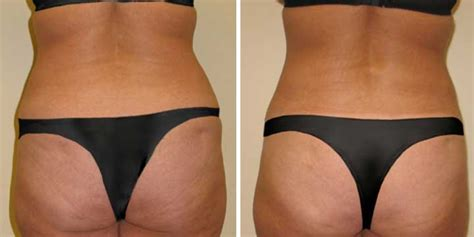 mommy makeover after c section tummy tuck case 13 maier plastic surgery