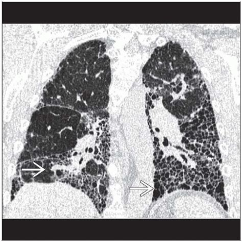 temporal pattern synonym idiopathic pulmonary fibrosis radiology key