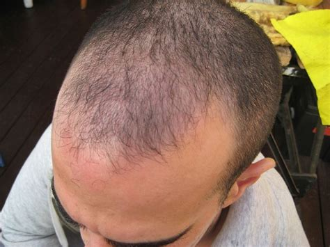hair transplant innovations 1000 images about advanced fue hair transplant is the