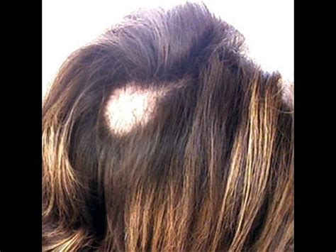 how to cut hair for womans bald spot red chilly oil get rid of bald patches with a new hair
