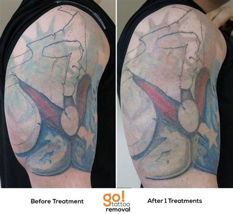 tattoo removal hton roads 728 best removal in progress images on
