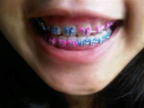 braces colors ideas 230 best images about braces color ideas on