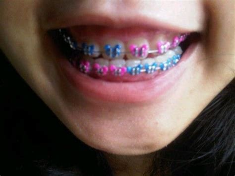 230 best images about braces color ideas on
