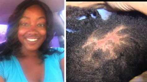 consequences of weave hair extensions danger hair weave
