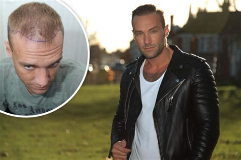 Looks Like Calum Best Is A Coke by Cbb Calum Best Reveals Shocking Surgery Snaps From