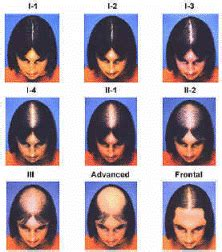 top partial systems female pattern baldness shears to early signs of hair loss and baldness in men and women
