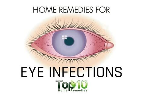 eye infection home remedy home remedies for eye infections top 10 home remedies