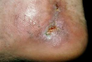 what color is spider blood varicose and spider vein pictures symptoms treatments