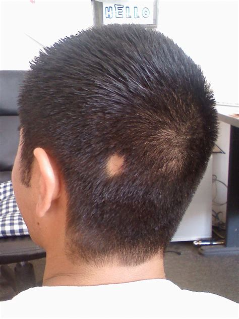 hair style temple bald spots hair bumps on scalp and bald spot pictures to pin on