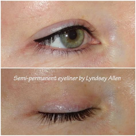 tattoo eyeliner after 10 years la perfection private medical aesthetics clinic in