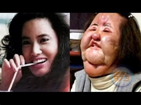 Ugliest Color In The World top ten weird most popular and trending plastic surgery