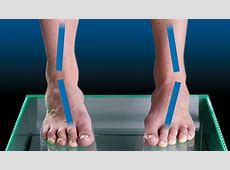 EXCESSIVE SUPINATION - FootBalance Arabia Foot Arch Muscles