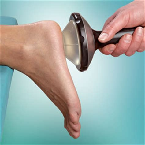 plantar fasciits pain relief san mateo pain relief