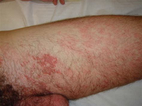 herpes zoster interno sacral herpes zoster presenting as sciatica herpes zoster