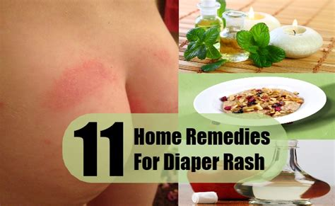 11 rash home remedies treatments cures